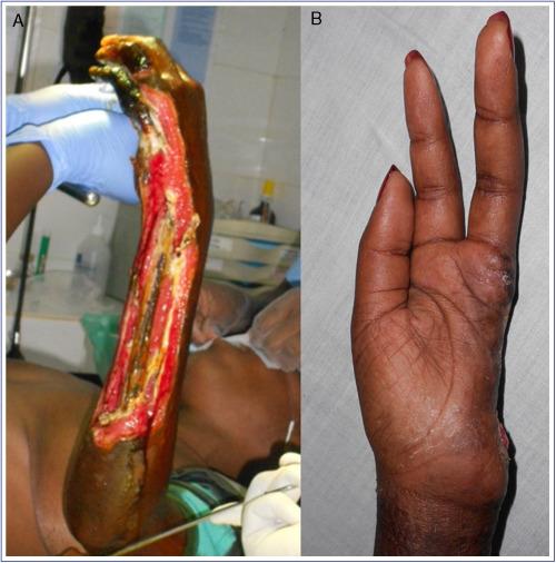 amputación de pierna debajo del tipo de diabetes de rodilla