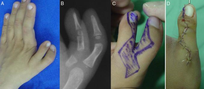 Polidactilias del pulgar. Tratamiento quirúrgico - ScienceDirect