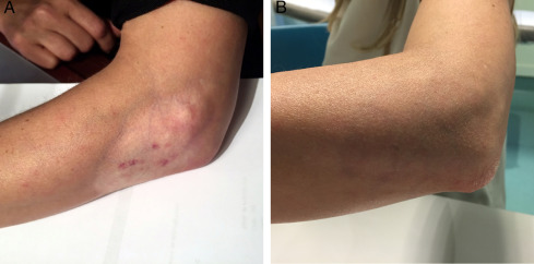 Treatment of Persistent Cutaneous Atrophy After