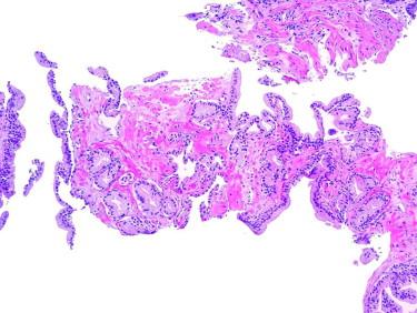 Hiperplasia adenomatosa atípica de próstata