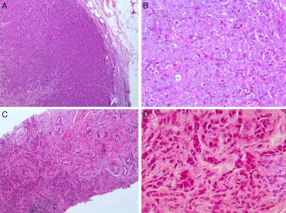 cáncer de próstata con afectación del ganglio linfático ilíaco derecho 2
