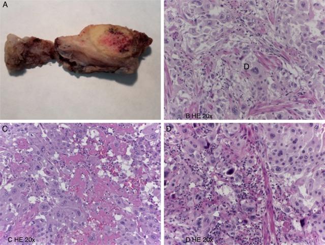Tumor placentario pdf