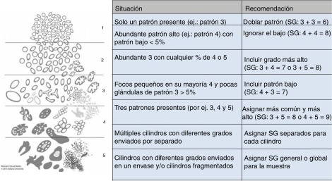 adenocarcinoma prostatico grado 4 gleason 8