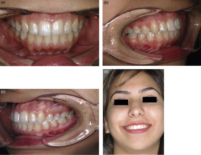 A new type of modified Essix Retainer for anterior open bite