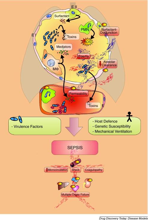 Experimental Models Of Pneumoniainduced Sepsis ScienceDirect - Pneumonia map us 201