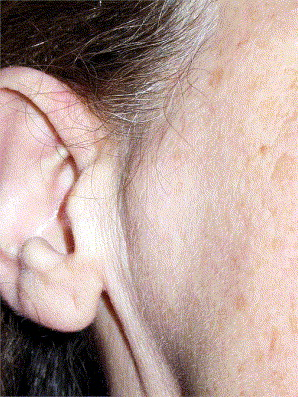Chondroblastoma Of The Mandibular Condyle Case Report Of An
