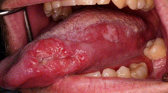 squamous papilloma floor of mouth