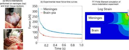 Protection of cortex by overlying meninges tissue during dynamic