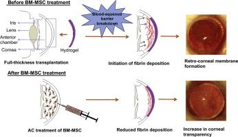 Mesenchymal stem cell therapy for retro-corneal membrane – A