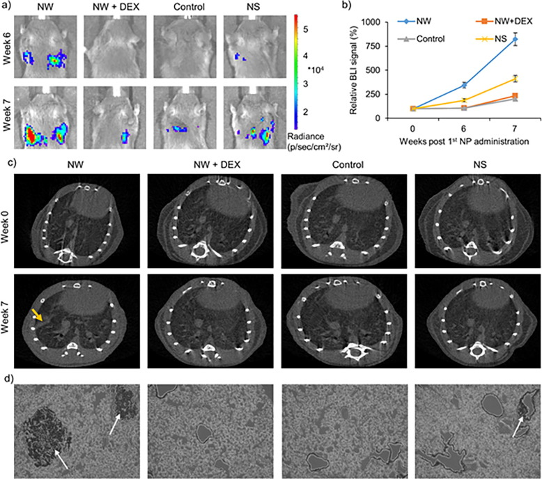 nanoparticle induced inflammation can increase tumor malignancy