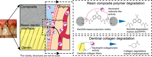 Human neutrophils degrade methacrylate resin composites and tooth