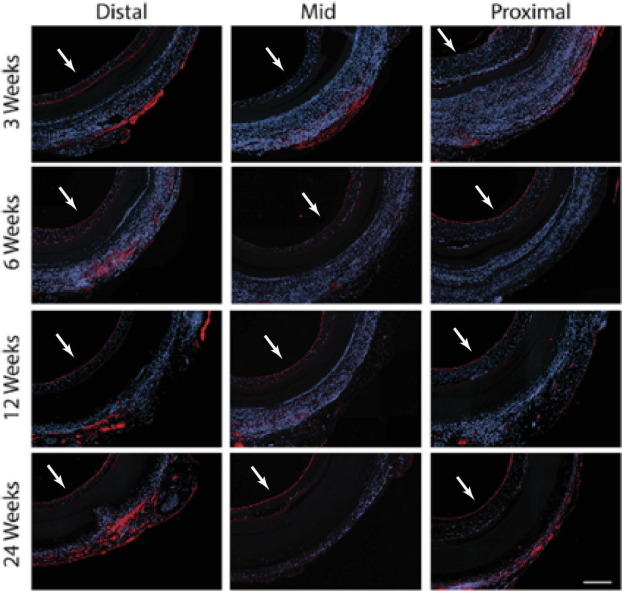 Endothelialization of cardiovascular devices - ScienceDirect