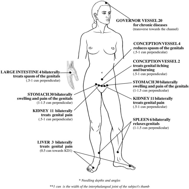 Acupuncture for the Treatment of Vulvodynia: A Randomized