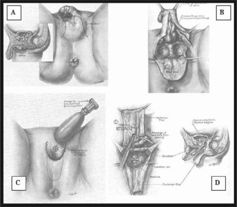 Development Of Feminizing Genitoplasty For Gender Dysphoria
