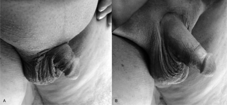 how to stretch penile suspensory ligament