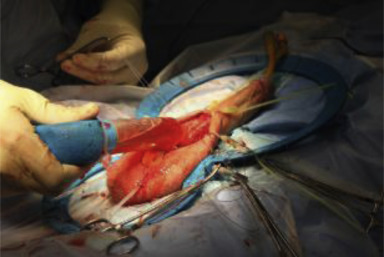 Penile Prosthesis Surgery Current Recommendations From The