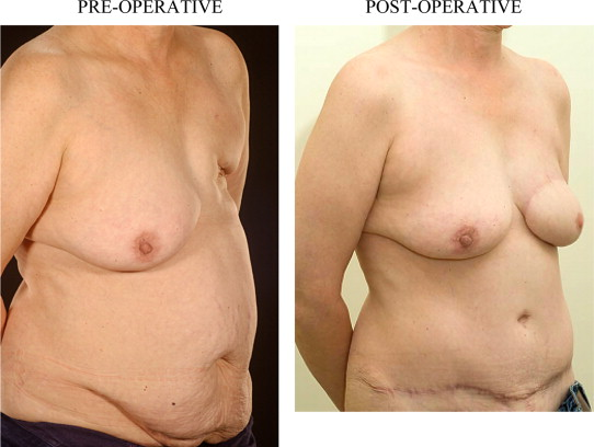 radiation Breast reconstruction after