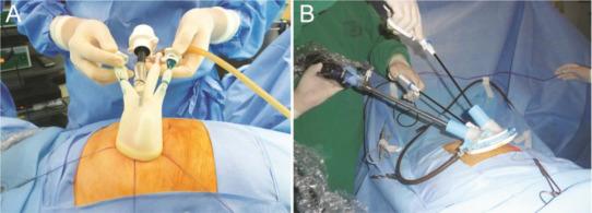 Closure Of Loop Ileostomy Potentially A Daycase Procedure