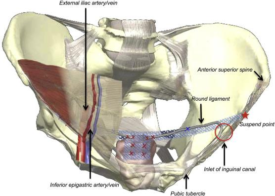 A New Laparoscopic Technique Of Inguinal Ligament Suspension For