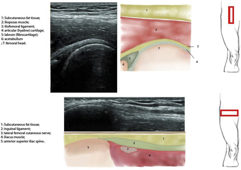 "Sports Ultrasound"", advantages, indications and limitations"