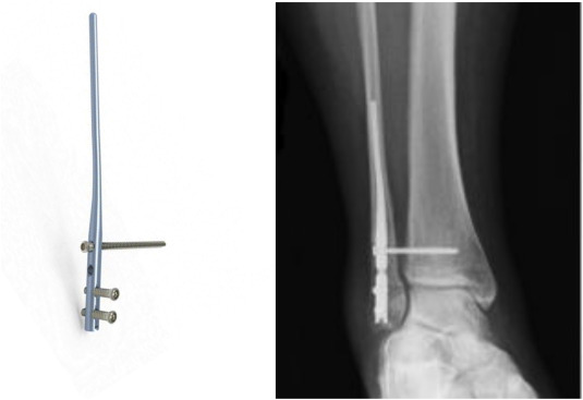 The implants used for intramedullary fixation of distal