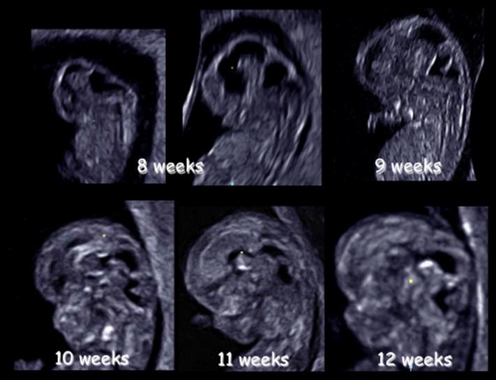 Neurosonoembryology By Three Dimensional Ultrasound Sciencedirect