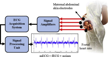Issues and research on foetal electrocardiogram signal