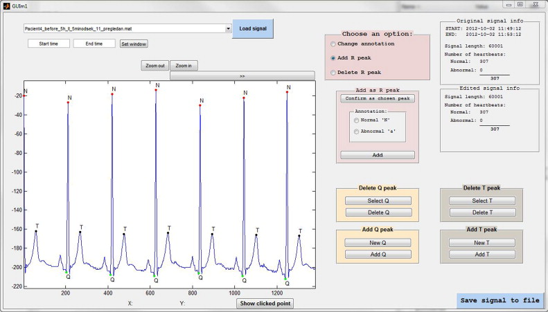 Matlab based tool for ecg and hrv analysis sciencedirect download full size image ccuart Choice Image
