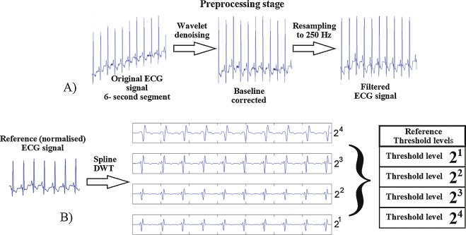 DSP-based arrhythmia classification using wavelet transform