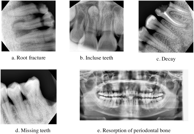 Dental Diagnosis From Xray S An Expert System Based On Fuzzy. Download Fullsize. Wiring. Mouth Diagram Labeled Radiograph At Scoala.co