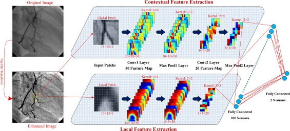 Segmentation of vessels in angiograms using convolutional