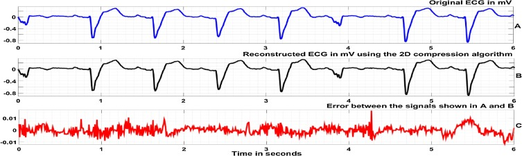 An ECG compression algorithm with guaranteed reconstruction