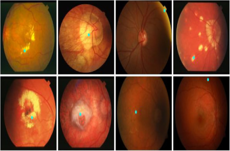 Automatic detection of optic disc in color fundus retinal