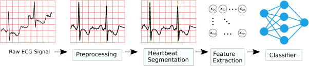 Heartbeat classification fusing temporal and morphological