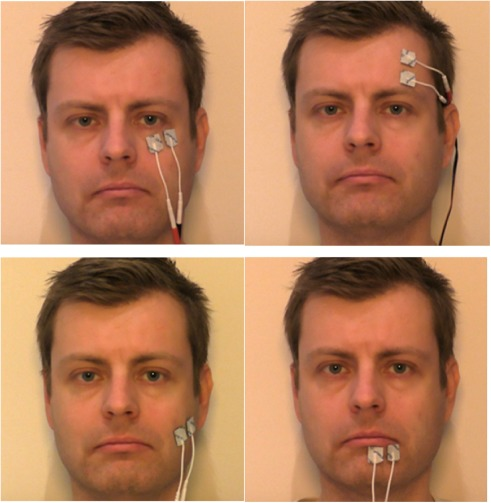 E-stim for facial muscles pic 749