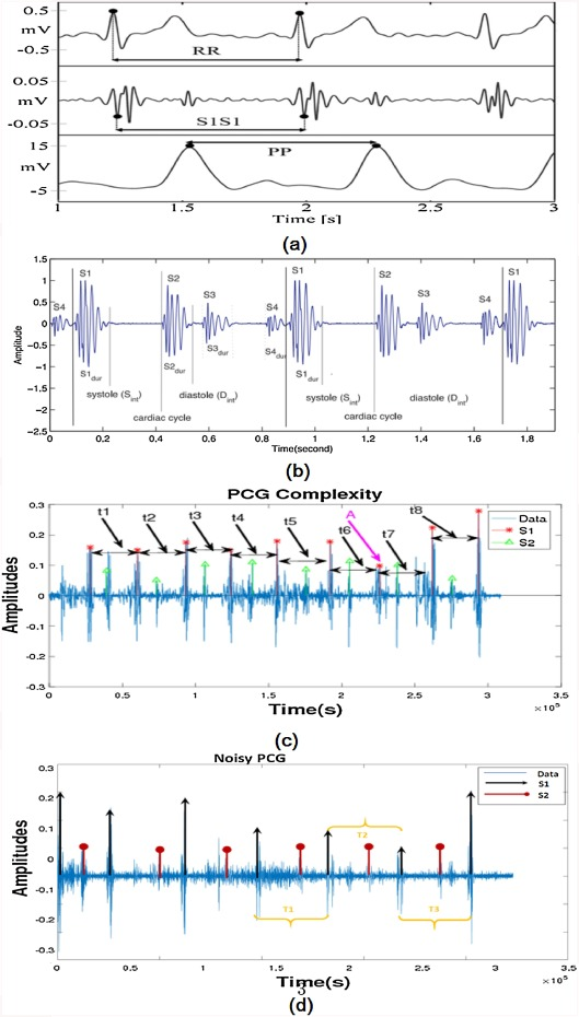 Localization and classification of heartbeats using robust