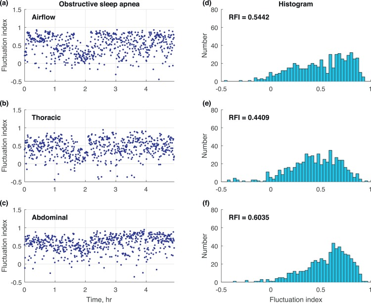 The Respiratory Fluctuation Index: A global metric of nasal