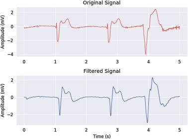 VFPred: A fusion of signal processing and machine learning