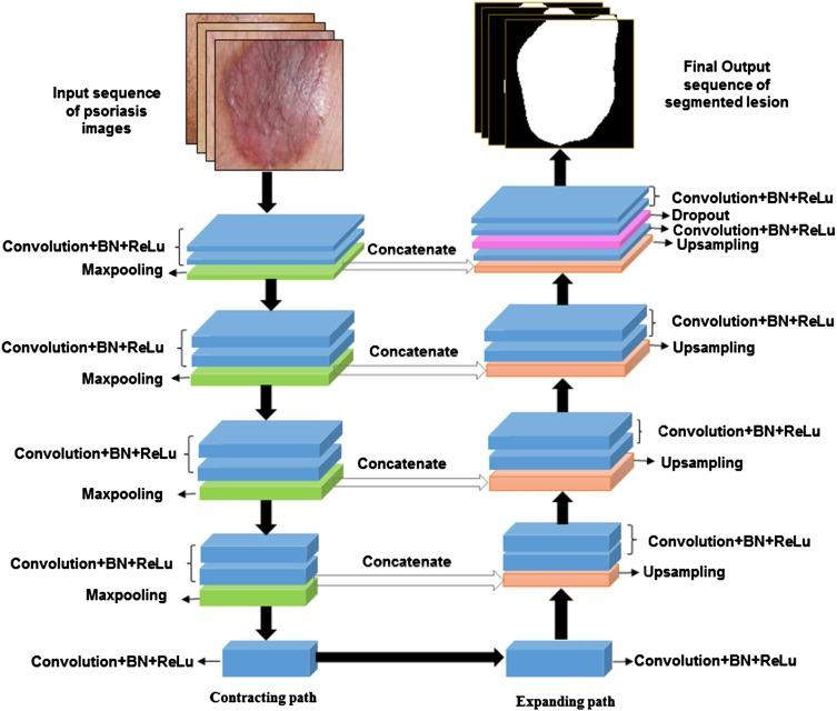 PsLSNet: Automated psoriasis skin lesion segmentation using modified