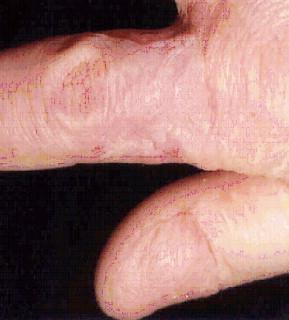 Thumb subungual melanoma: Is amputation necessary