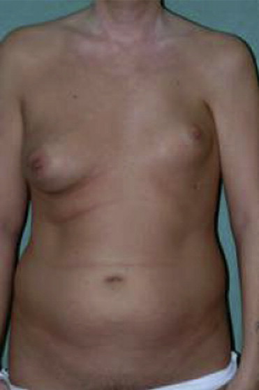 Polands syndrome female breast reconstruction