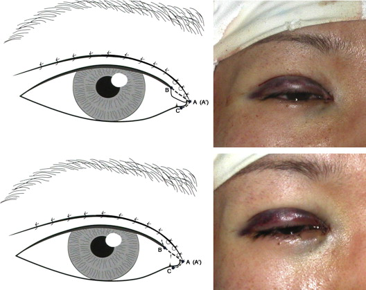 Medial epicanthoplasty using the palpebral margin incision