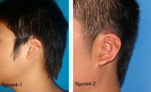 Which Ear Deformities can be corrected with EarBuddies™ Splints?