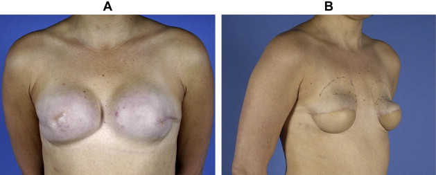breast reconstruction result Poor