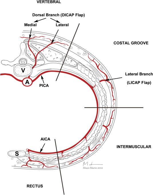 Dorsolateral Musculocutaneous Perforators Of Posterior Intercostal