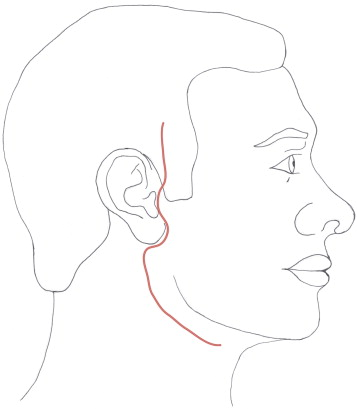 Static Support In The Facial Palsy Patient A Case Series Of 51