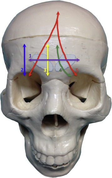 A novel classification of frontal bone fractures: The prognostic ...