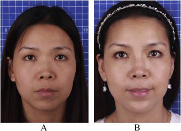 Multiplane hyaluronic acid (EME) in female Chinese rhinoplasty using