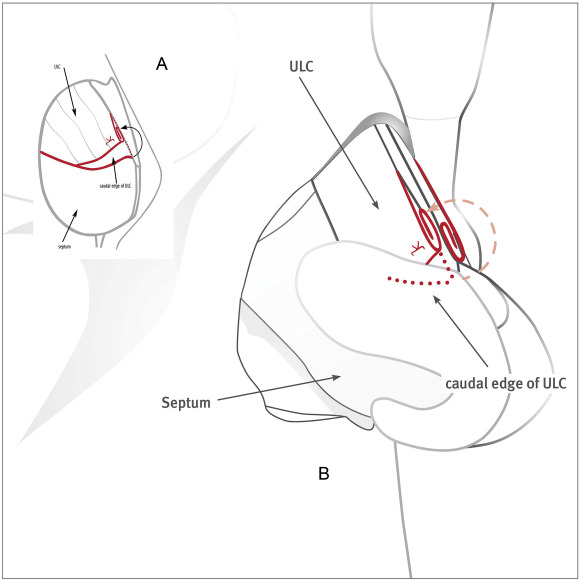 Anterior Spreader Flap Technique A New Minimally Invasive Method