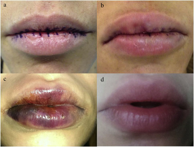 Permanent implants for lip augmentation: Results from a